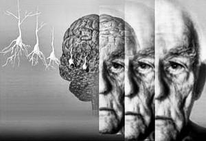 В Австралии научились выявлять склонность к болезни Альцгеймера по анализу крови