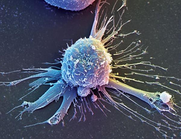 Стволовые клетки могут раскрыть секрет восстановления ампутированных пальцев рук и ног