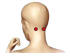 Разработан имплант, оперативно снижающий кровяное давление